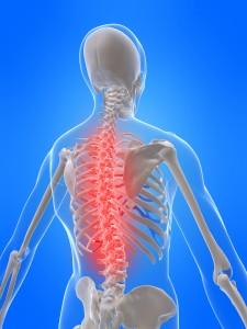 Exercising with back pain Erina